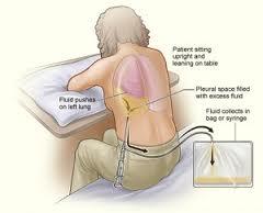 Pulmonary pleurisy