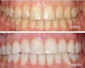 Odontologia Moderna Como Funciona O Clareamento Dentario