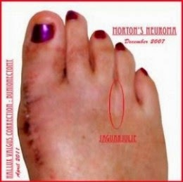 mortons neuroma and bunionectomy surgeries right foot jaguarjulie