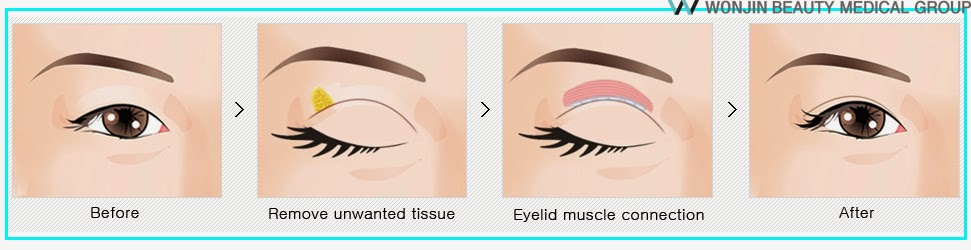 korean_best_eye_plastic_surgery