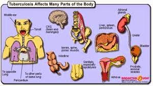 Bahaya Penyakit TBC Tulang