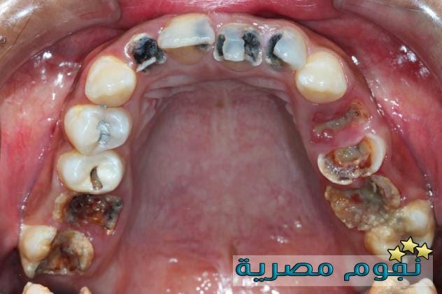 حقائق غريبة عن الأسنان