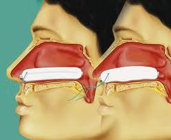 miếng thấm máu mũi