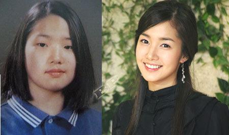 Park Min Young Operasi Plastik