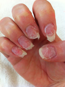 Both Doctors Recommend Taking Weeklong Breaks From Gel Manicures At Least Once Every Eight Weeks This Serves Two Purposes First You Can Make Sure There