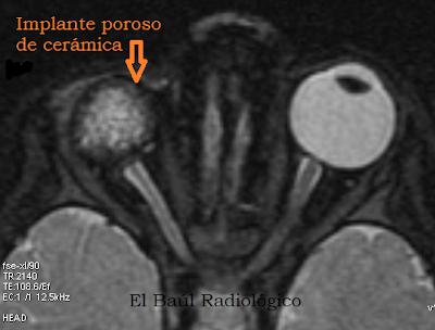 Protesis+ocular+4.png