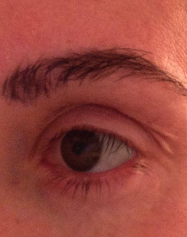 Chemo Biyatch Fallen Eyebrows
