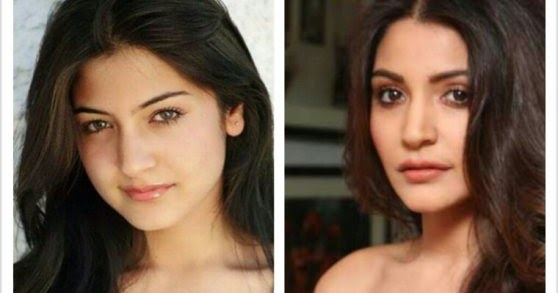 anushka sharma plastic surgery disaster anushka before