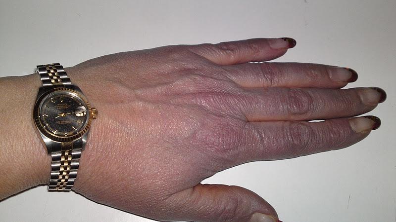 blåa händer symptom