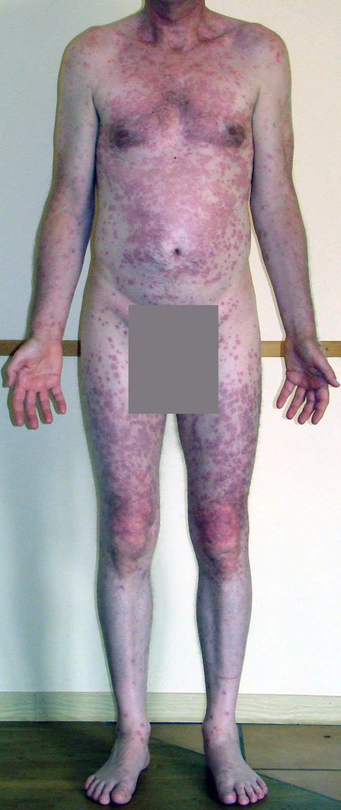 micardis telmisartan 80 mg side effects