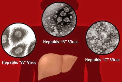 Penampakan virus hepatitis A, B dan C yang menyebabkan pembengkakan hati