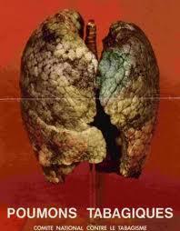 l 39 mancip les greffes de poumons de fumeurs restent n cessaires. Black Bedroom Furniture Sets. Home Design Ideas