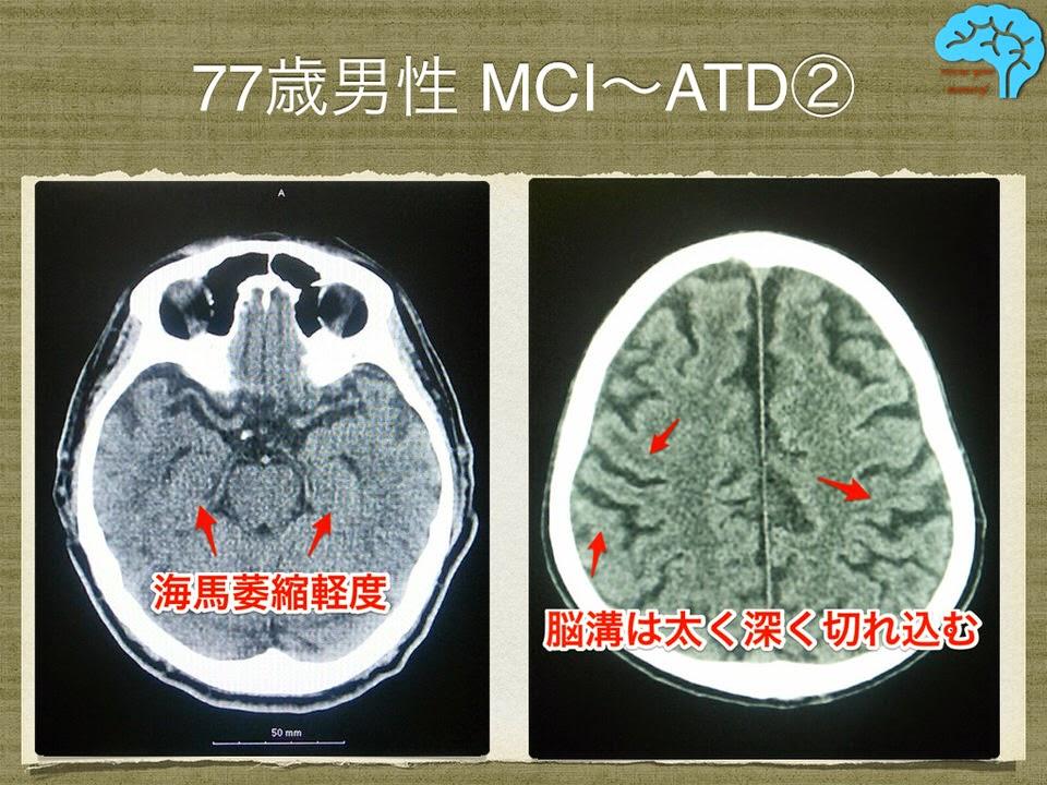 77歳男性でアルツハイマー 頭部CT