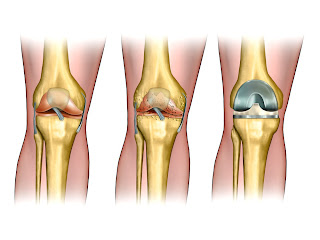 Joint Pain Problems