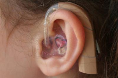 Tuli dengan alat bantu dengar