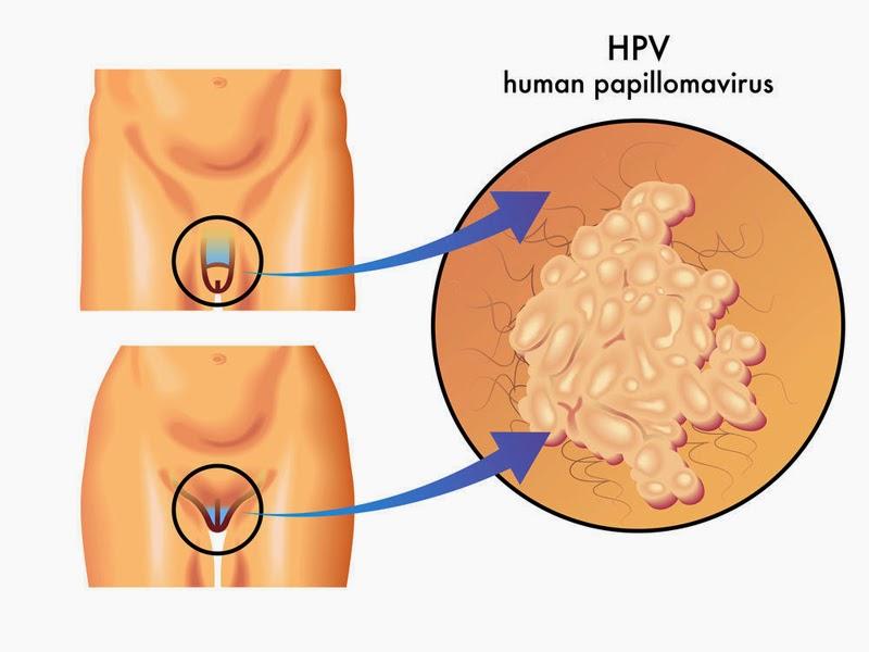 Папиллома в интимном месте у женщин лечение в домашних условиях