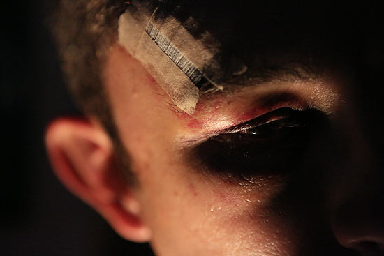 Marcas da agressão sofrida por P.R. ele teve um osso da face fraturado no último domingo (Foto: Silva Junior/Folhapress)