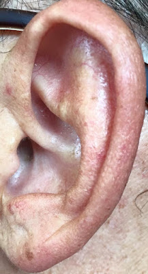 imagen de oreja de persona mayor