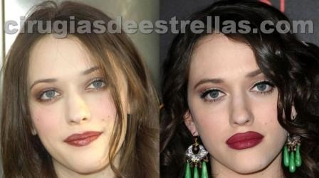 kat dennings before after