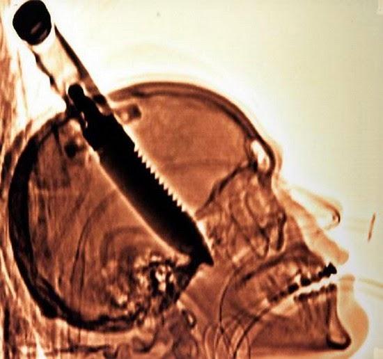 Cuchillo en cráneo