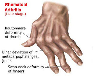 Nursing Assessment for Rheumatoid Arthritis