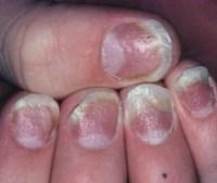 Psoriatic Nail Disease