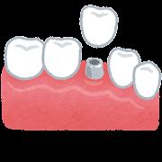 インプラントのイラスト(歯の治療)