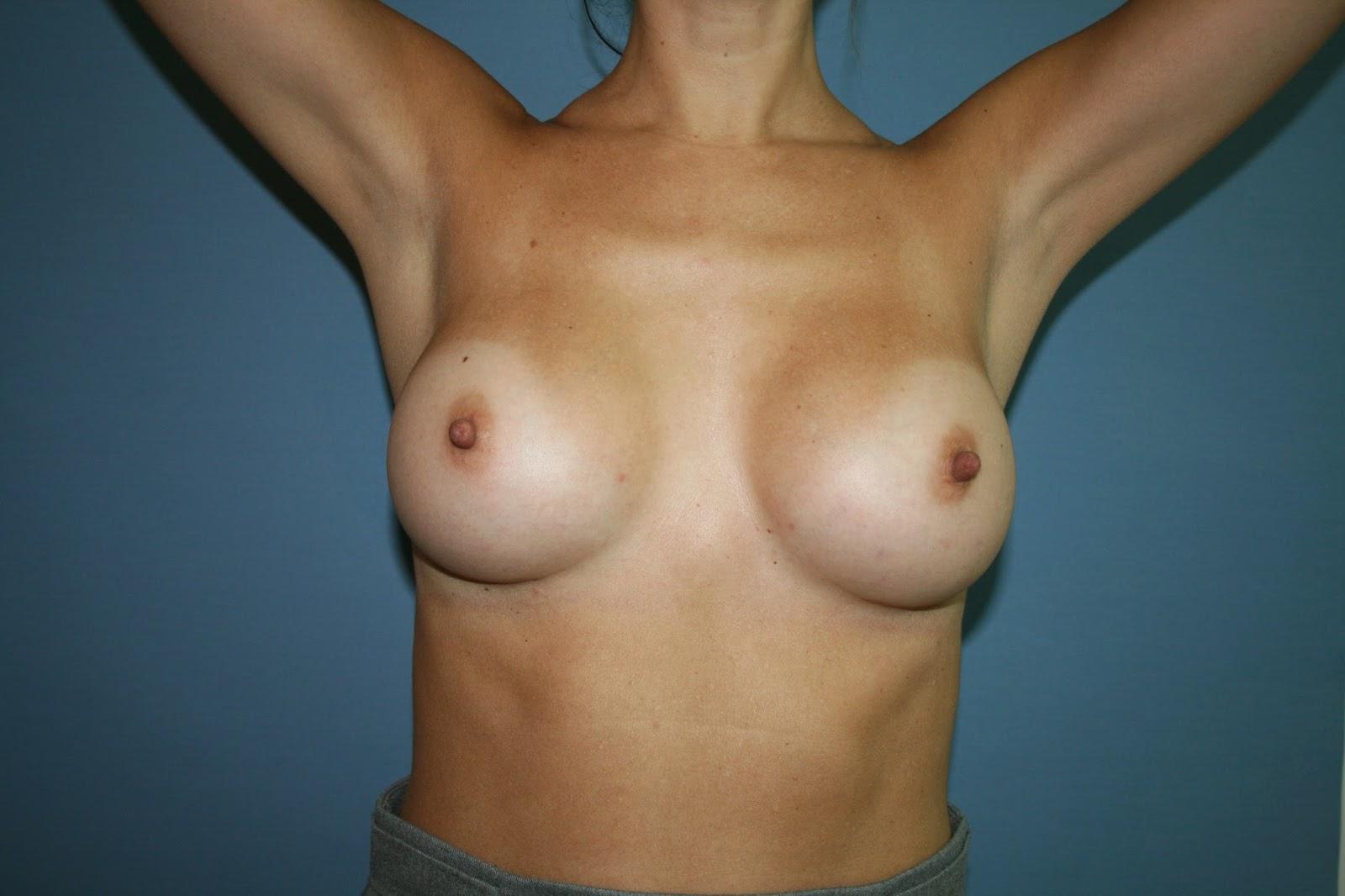 aumento_mamas_madrid_cirujano_plastico