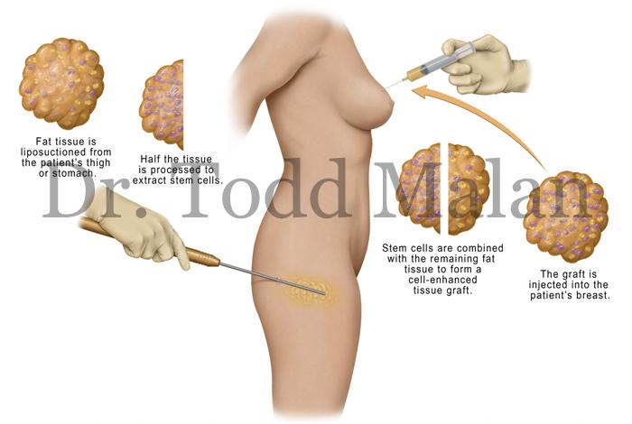 ISAPS - Trasplante de grasa Lipofilling Facial- ISAPS