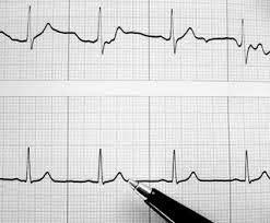 Atrial fibrillation is caused due to irregular heart beat