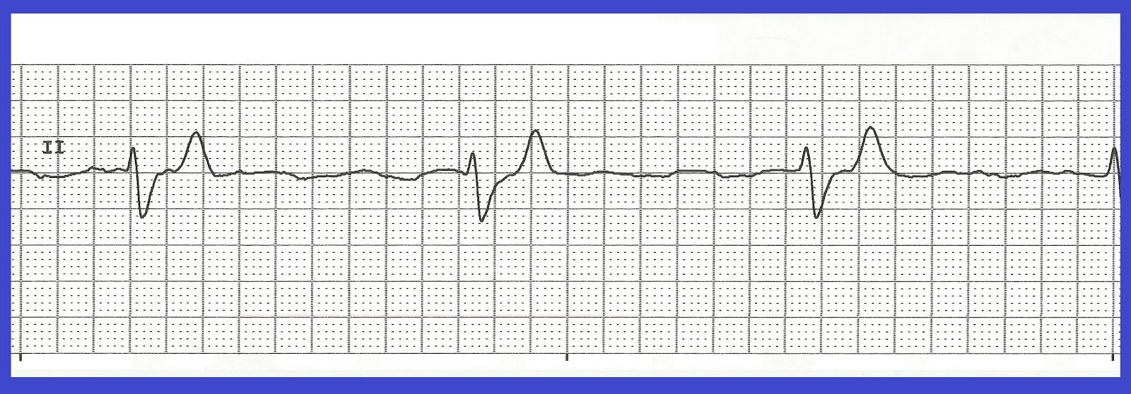 Float Nurse: Basic EKG Rhythm Test 10