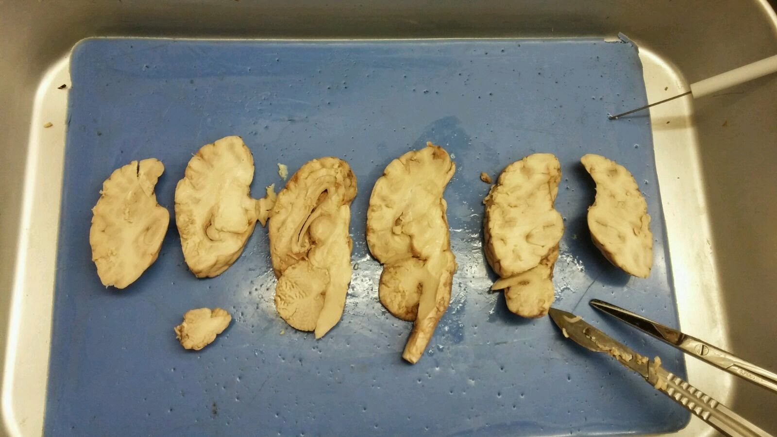 Human Anatomy & Physiology: Sheep Brain Dissection