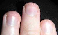 Uñas azuladas