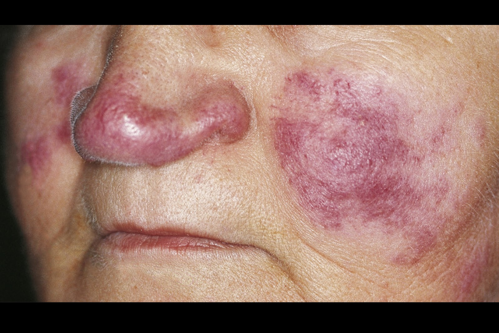 Discoid Lupus Symptoms, Diagnosis, Treatments and Causes ...