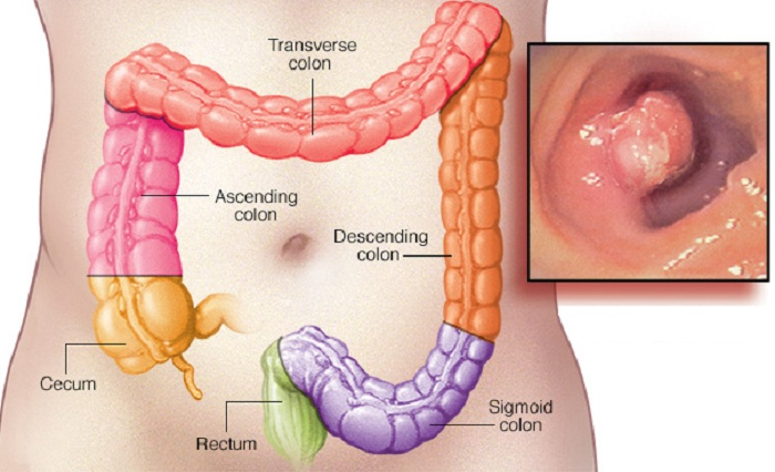 7 Early-Warning Signs of Rectum-Cancer Everyone is Too Embarrassed ...