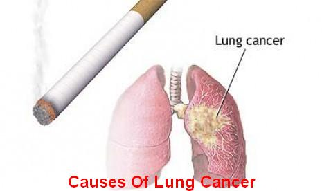 an analysis of the lung cancer effects symptoms and prevention for the disease Siteman cancer center is a leader in cancer treatment, research & education   is to get a correct diagnosis of your condition and decide what treatment is  needed  may do a variety of tests, including examination of the chest, lungs or  esophagus with a  chemotherapy and radiation given together for better effect  of each.