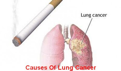 Lung Cancer: Causes, Symptoms, Diagnosis And Treatment