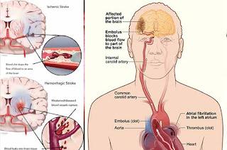cara mengobati stroke secara alami