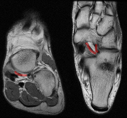 Right ankle anatomy