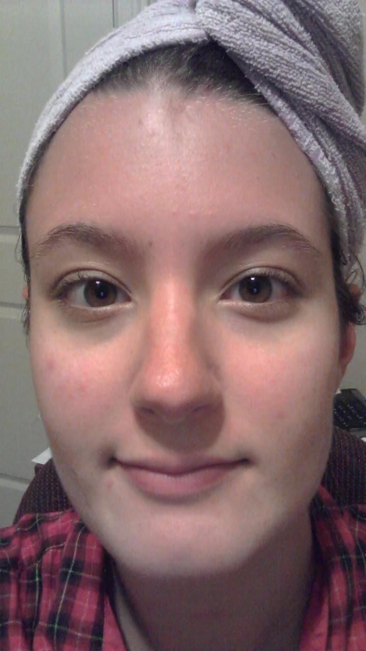 La faccia di decolorazione fa i bagagli per pelle di problema