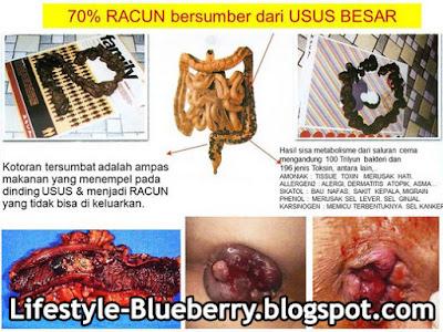 Usus Kotor - Jual Obat Herbal Alami Pelangsing Perut Buncit di Bandung