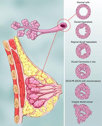 Какова продолжительность жизни при раке молочной железы 3 степени
