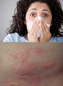 Reaksi Alergi (Reaksi Hipersensitivitas)