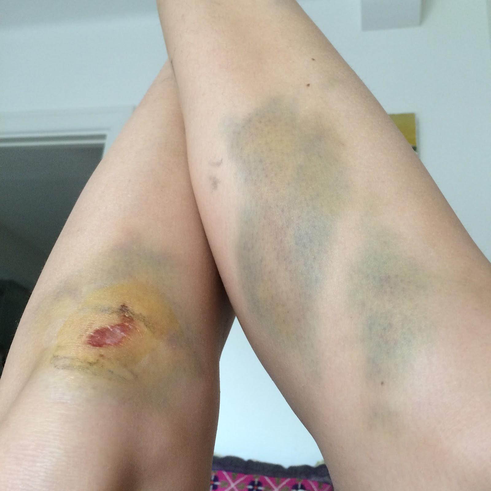 spontana blåmärken på benen