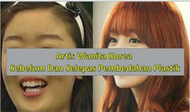 Gambar Arti Korea Yang Buruk Bertukar Cun Lepas Pembedahan Anda Pasti Terkejut