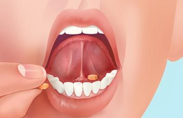 medicine klonopin sublingual dosage