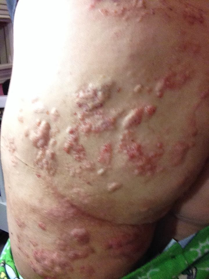 Infected butt