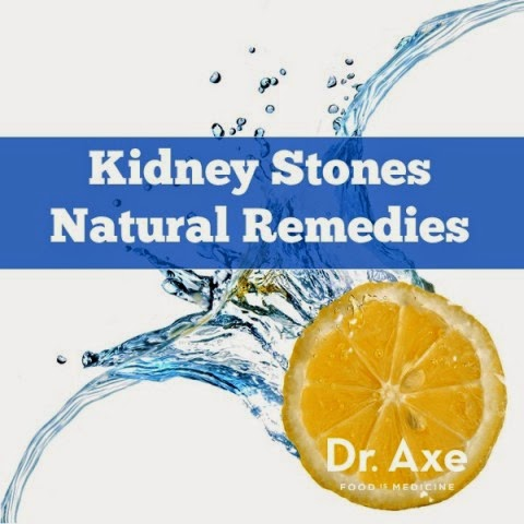 Top Natural Remedies for Kidney Stones
