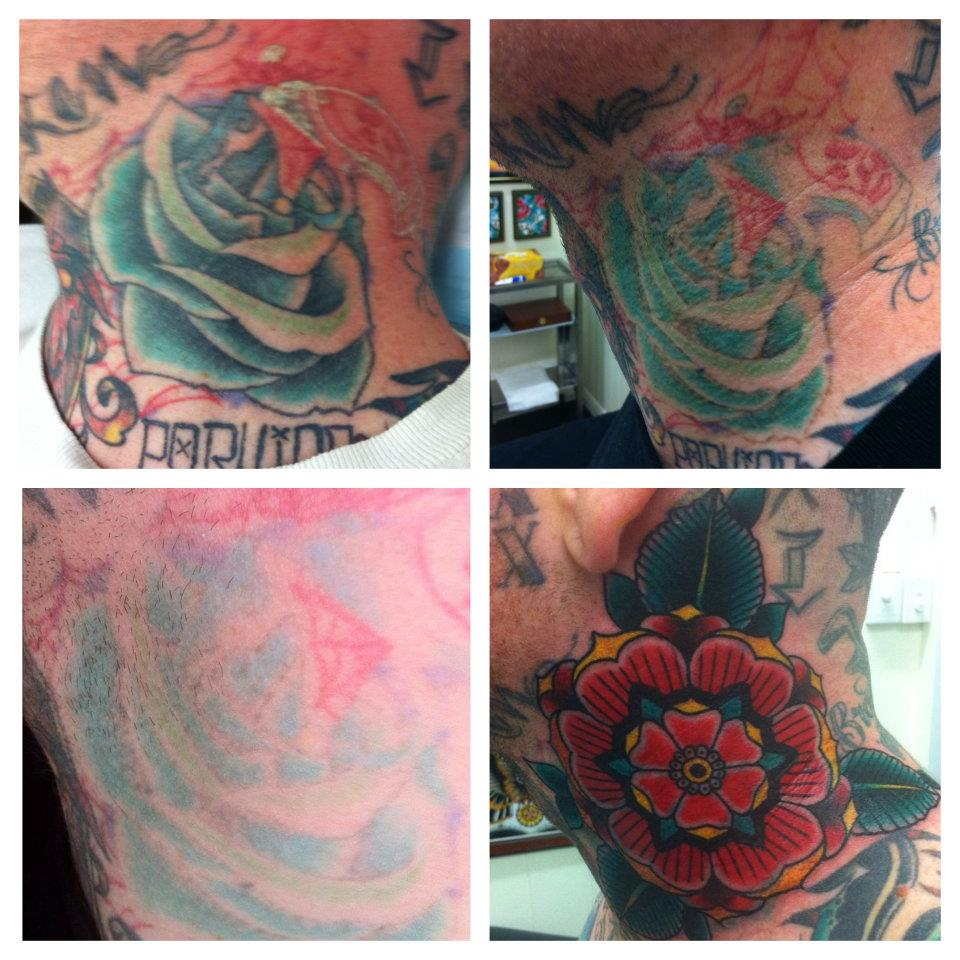 Tattoo Cover Ups Before And After Before / after 1 session