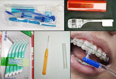 Cara menyikat gigi berbehel - sikat gigi untuk behel elektrik